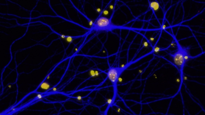 BRCA1 in neurons_2130x1198